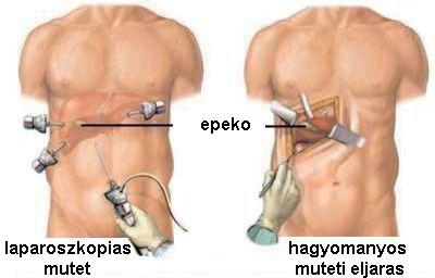 Epekő műtét.