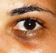 Karikás szem.