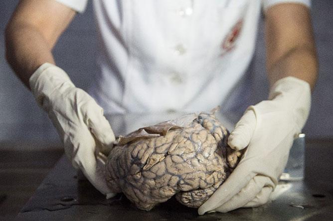 emberi agy.